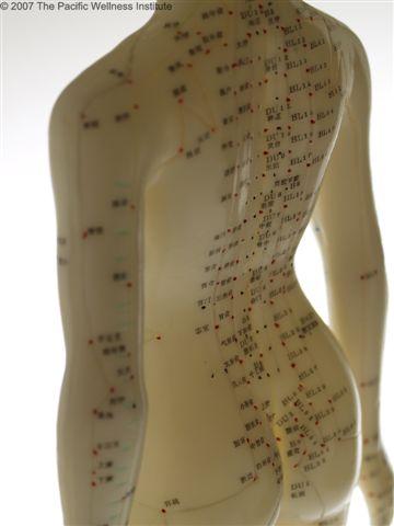 akupunktura-2